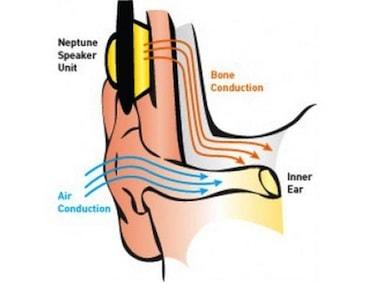 Bone Conduction